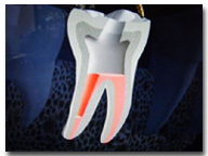 One Visit Endodontics (Root Canals)